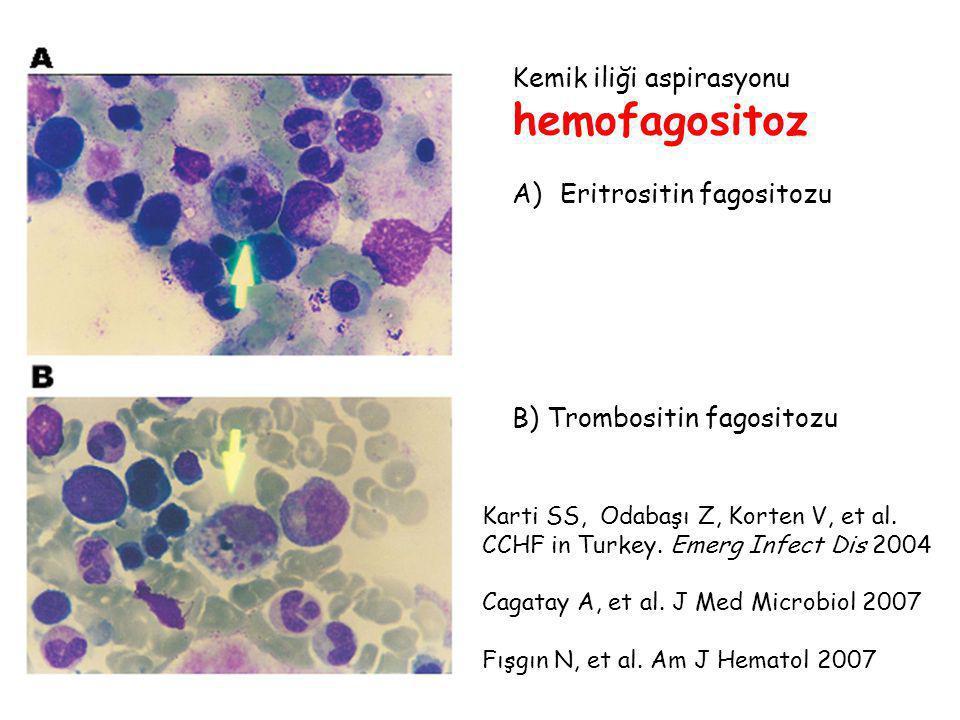 hemofagositoz Kemik iliği aspirasyonu Eritrositin fagositozu