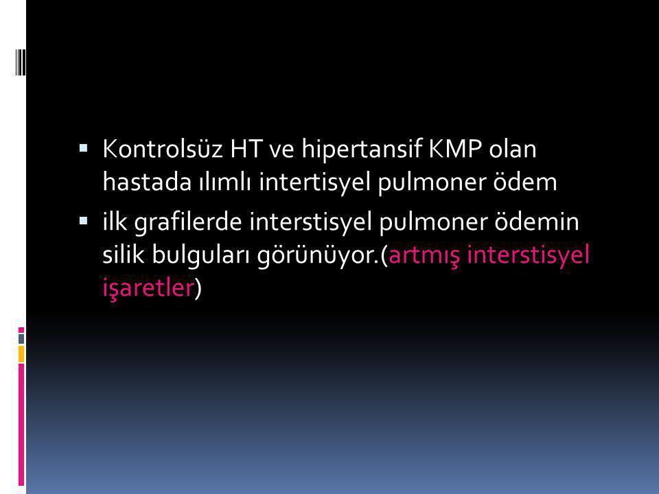 Kontrolsüz HT ve hipertansif KMP olan hastada ılımlı intertisyel pulmoner ödem