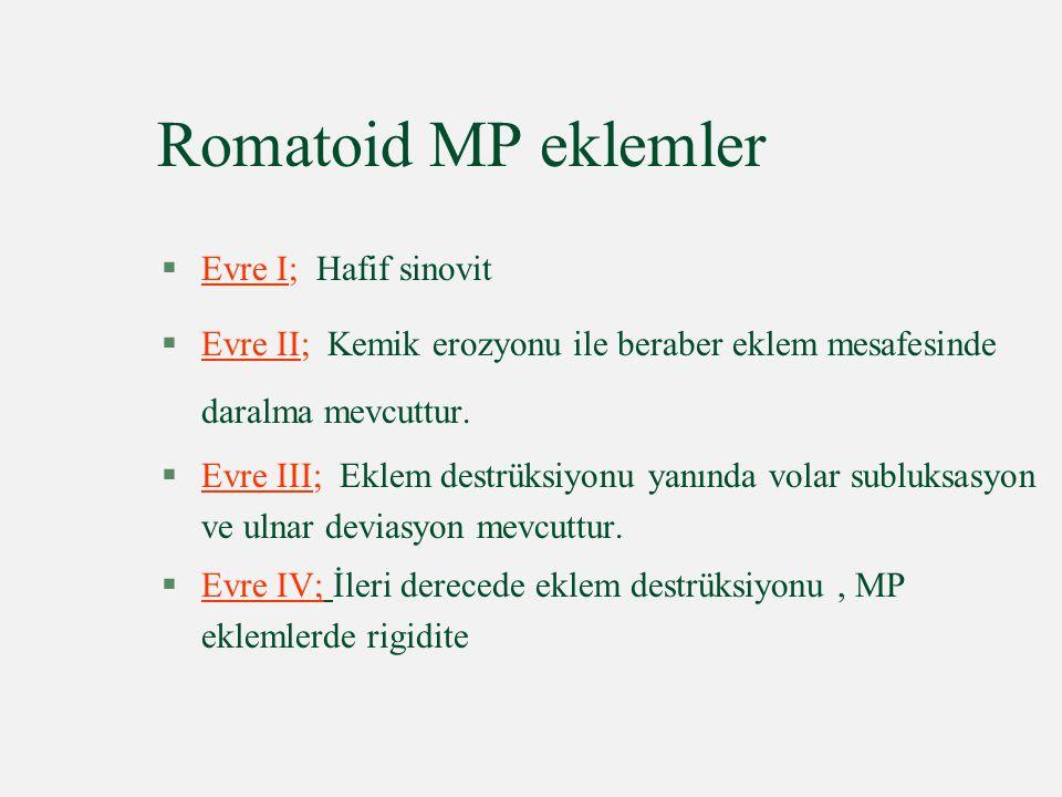 Romatoid MP eklemler Evre I; Hafif sinovit