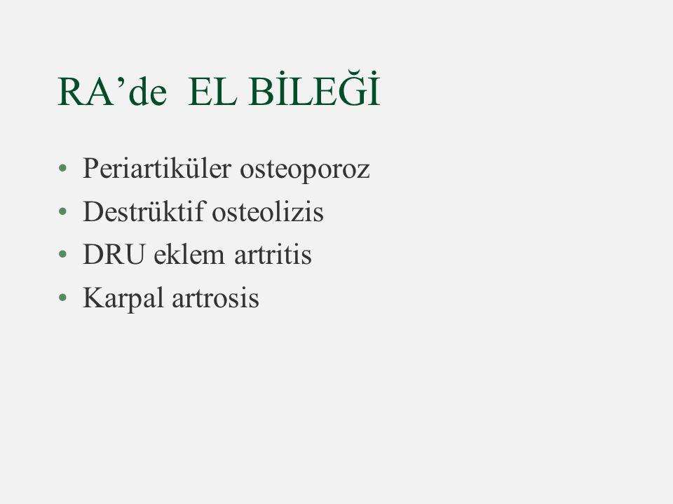 RA'de EL BİLEĞİ Periartiküler osteoporoz Destrüktif osteolizis