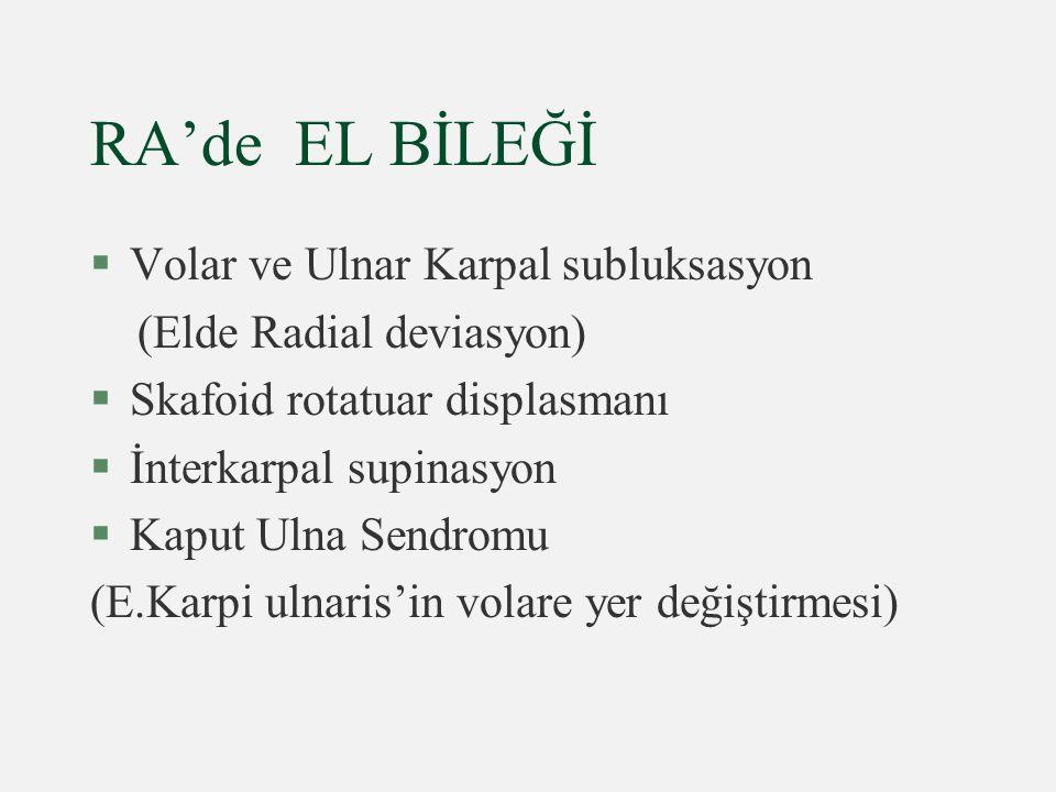 RA'de EL BİLEĞİ Volar ve Ulnar Karpal subluksasyon
