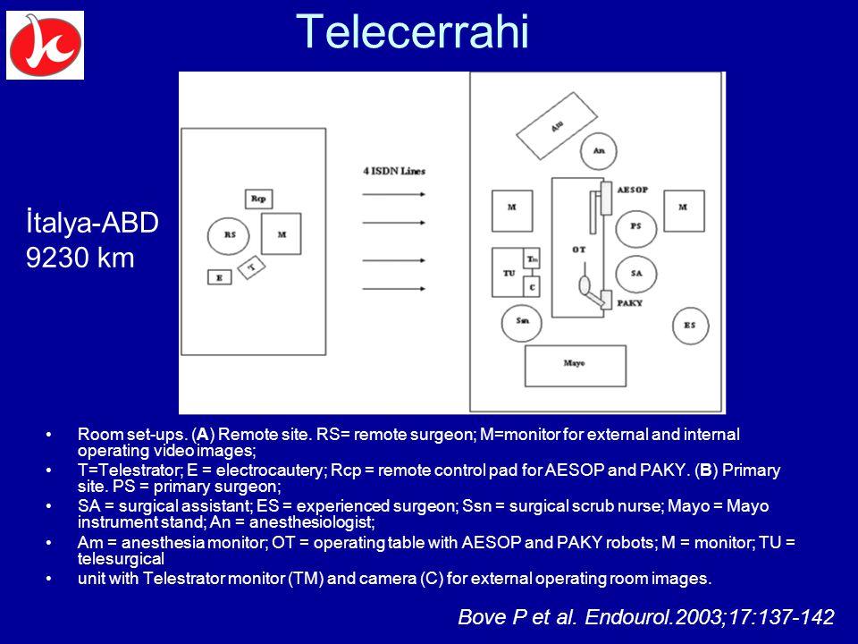Telecerrahi İtalya-ABD 9230 km Bove P et al. Endourol.2003;17:137-142