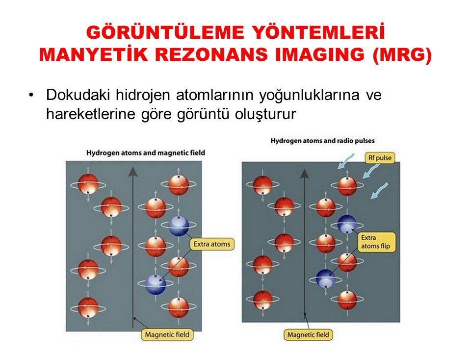 GÖRÜNTÜLEME YÖNTEMLERİ MANYETİK REZONANS IMAGING (MRG)