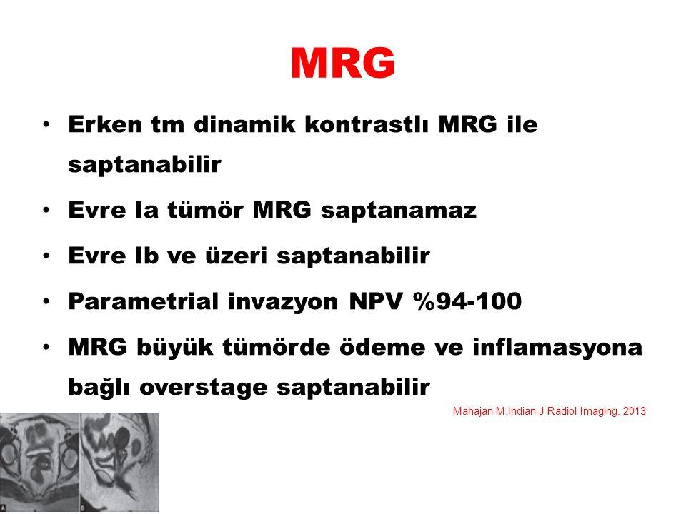 MRG Erken tm dinamik kontrastlı MRG ile saptanabilir