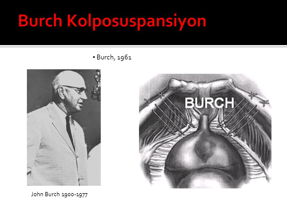 Burch Kolposuspansiyon