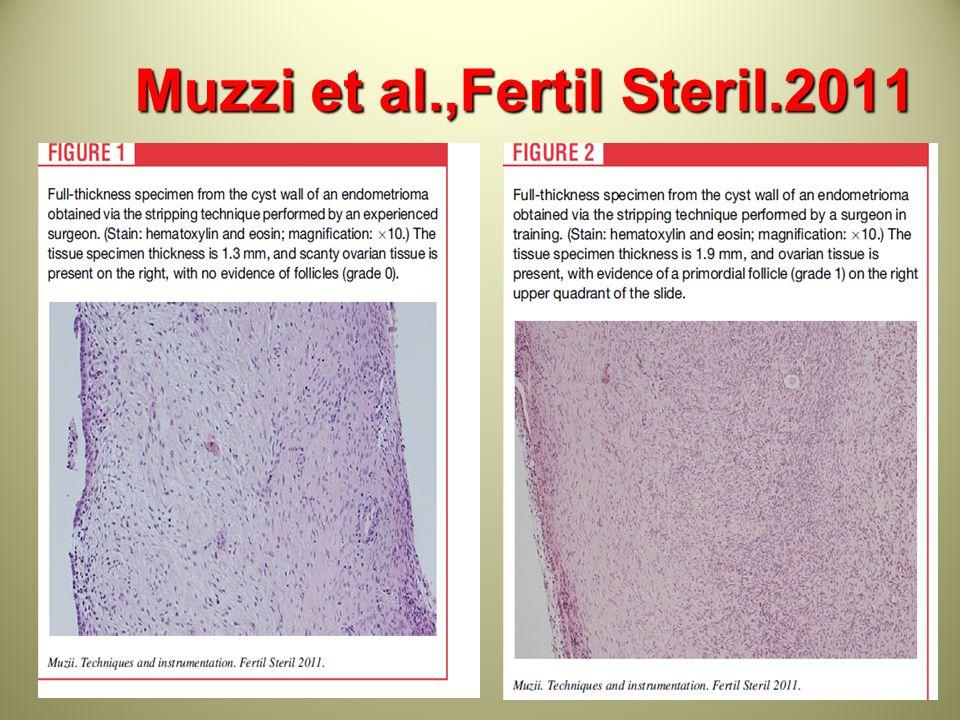 Muzzi et al.,Fertil Steril.2011