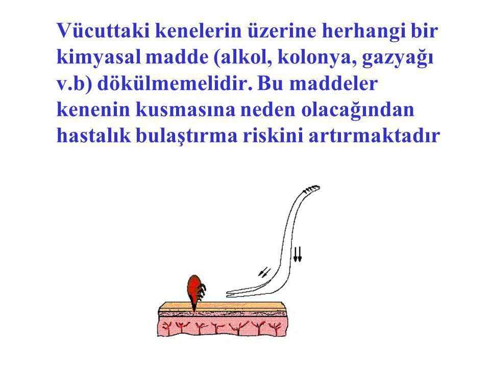 Vücuttaki kenelerin üzerine herhangi bir kimyasal madde (alkol, kolonya, gazyağı v.b) dökülmemelidir.