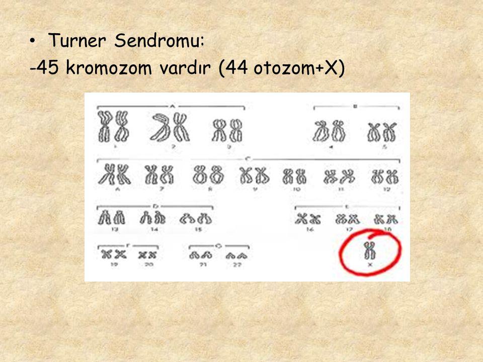Turner Sendromu: -45 kromozom vardır (44 otozom+X)