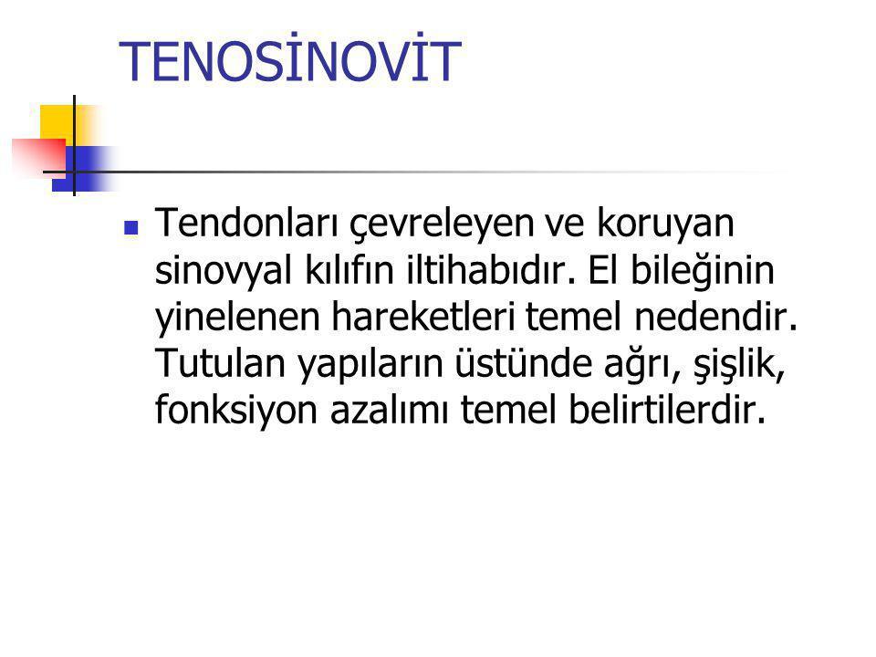 TENOSİNOVİT
