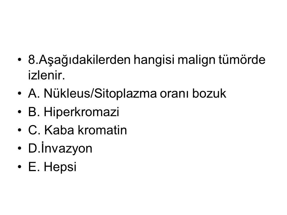 8.Aşağıdakilerden hangisi malign tümörde izlenir.