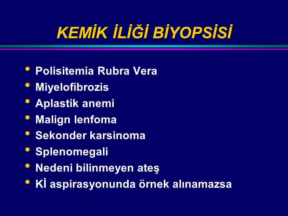 KEMİK İLİĞİ BİYOPSİSİ Polisitemia Rubra Vera Miyelofibrozis