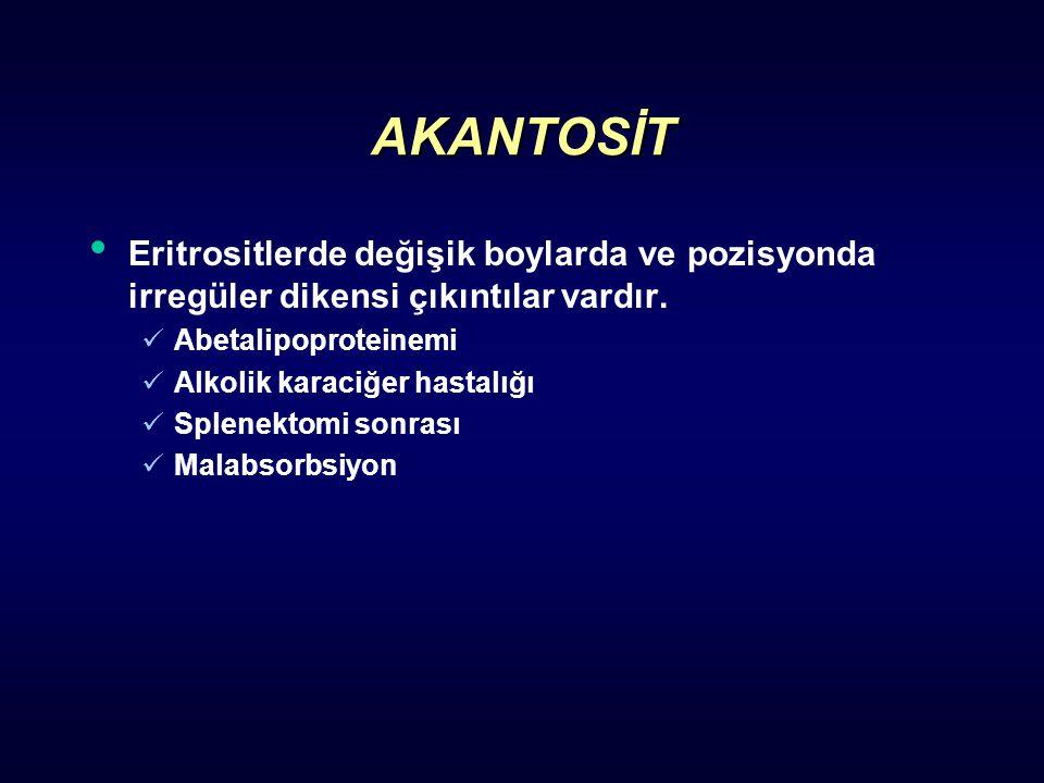 AKANTOSİT Eritrositlerde değişik boylarda ve pozisyonda irregüler dikensi çıkıntılar vardır. Abetalipoproteinemi.