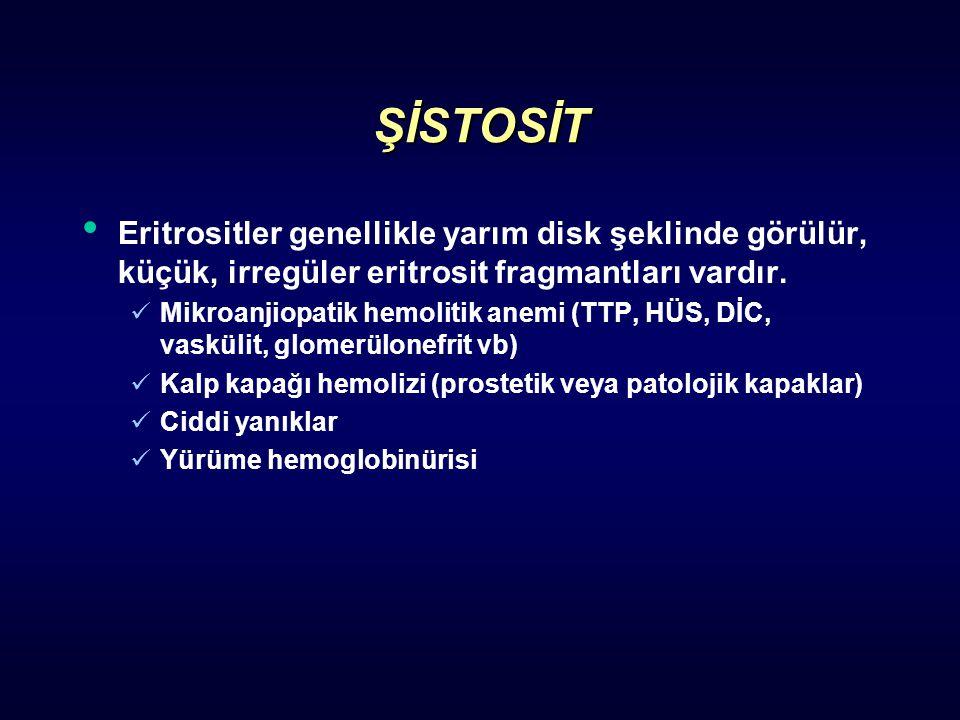 ŞİSTOSİT Eritrositler genellikle yarım disk şeklinde görülür, küçük, irregüler eritrosit fragmantları vardır.