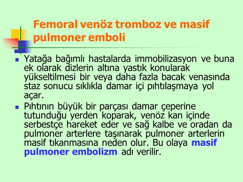Femoral venöz tromboz ve masif pulmoner emboli