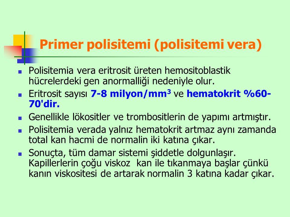 Primer polisitemi (polisitemi vera)