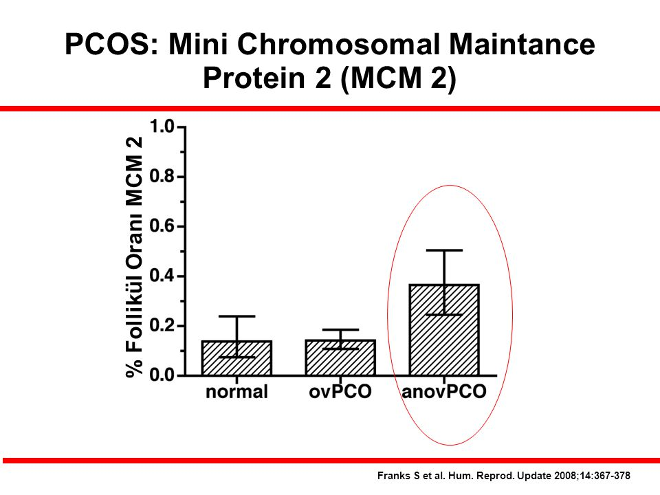 PCOS: Mini Chromosomal Maintance Protein 2 (MCM 2)