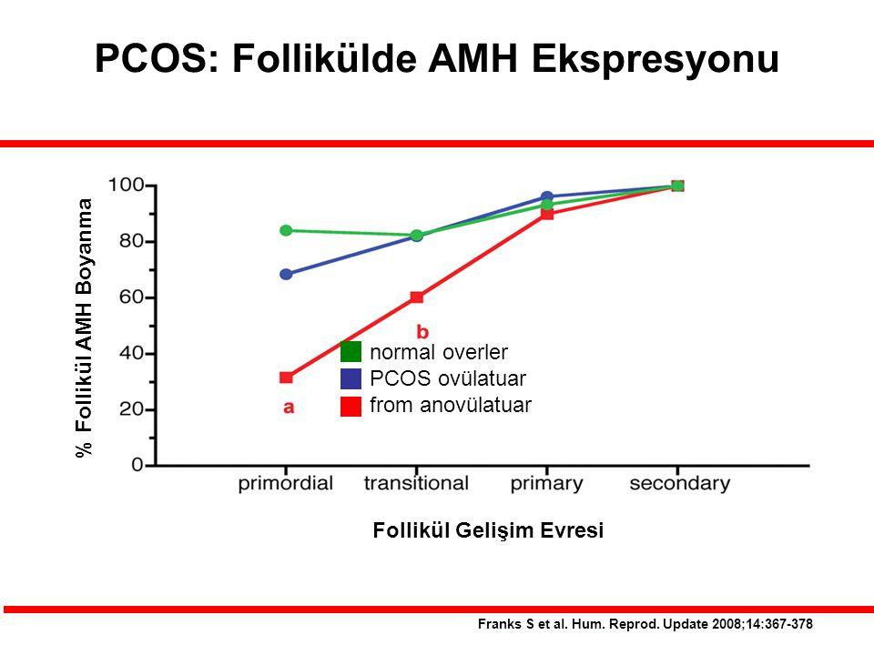 PCOS: Follikülde AMH Ekspresyonu Follikül Gelişim Evresi