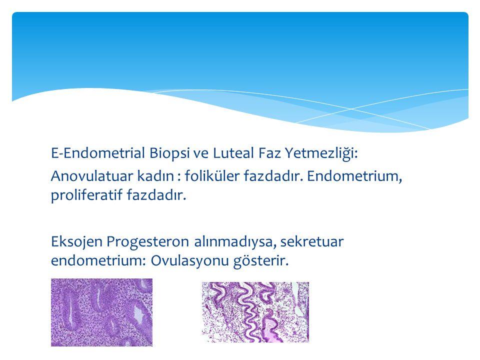 E-Endometrial Biopsi ve Luteal Faz Yetmezliği: Anovulatuar kadın : foliküler fazdadır.