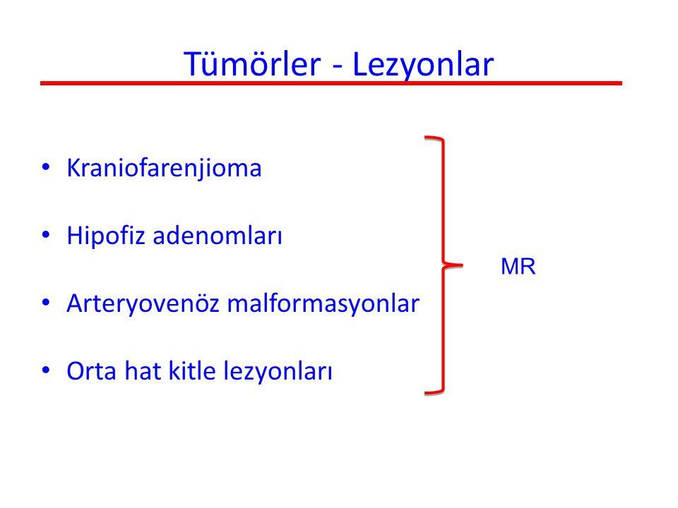Tümörler - Lezyonlar Kraniofarenjioma Hipofiz adenomları