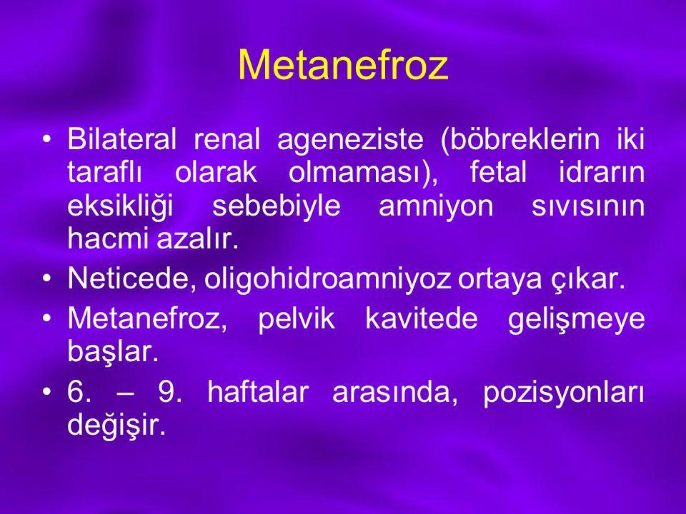 Metanefroz Bilateral renal ageneziste (böbreklerin iki taraflı olarak olmaması), fetal idrarın eksikliği sebebiyle amniyon sıvısının hacmi azalır.