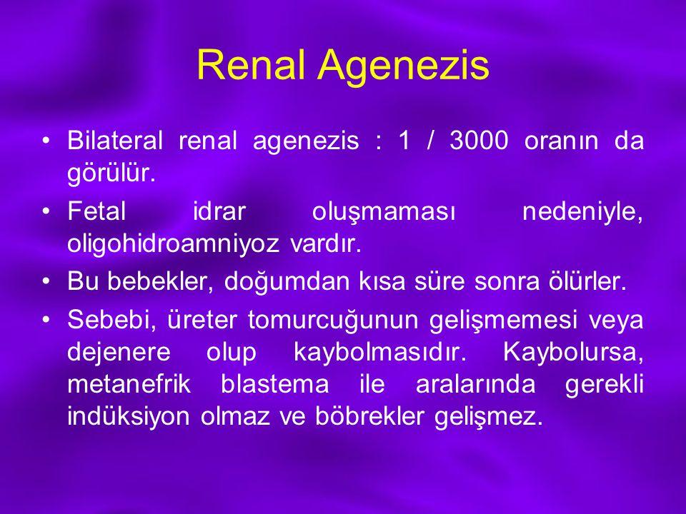 Renal Agenezis Bilateral renal agenezis : 1 / 3000 oranın da görülür.