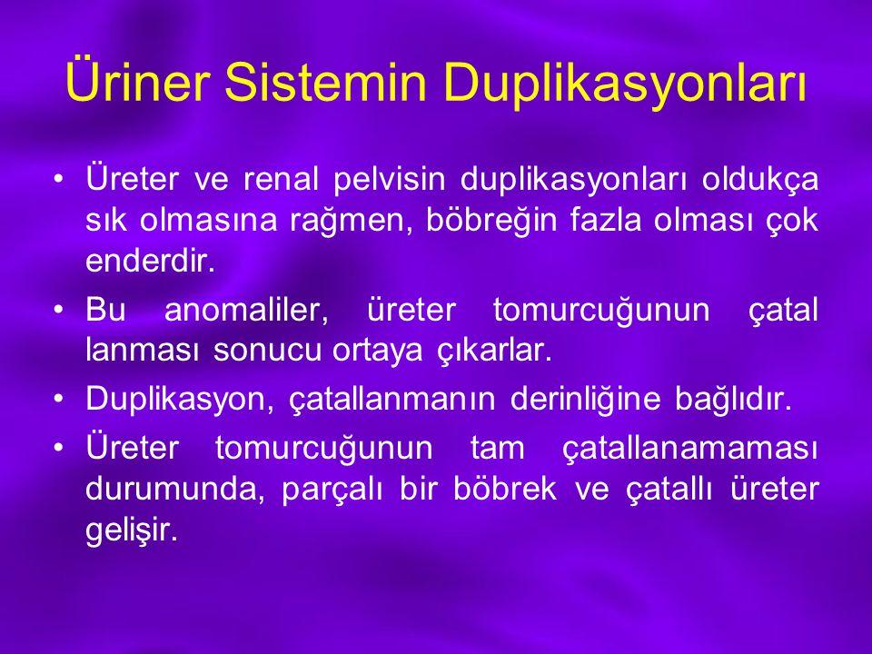 Üriner Sistemin Duplikasyonları