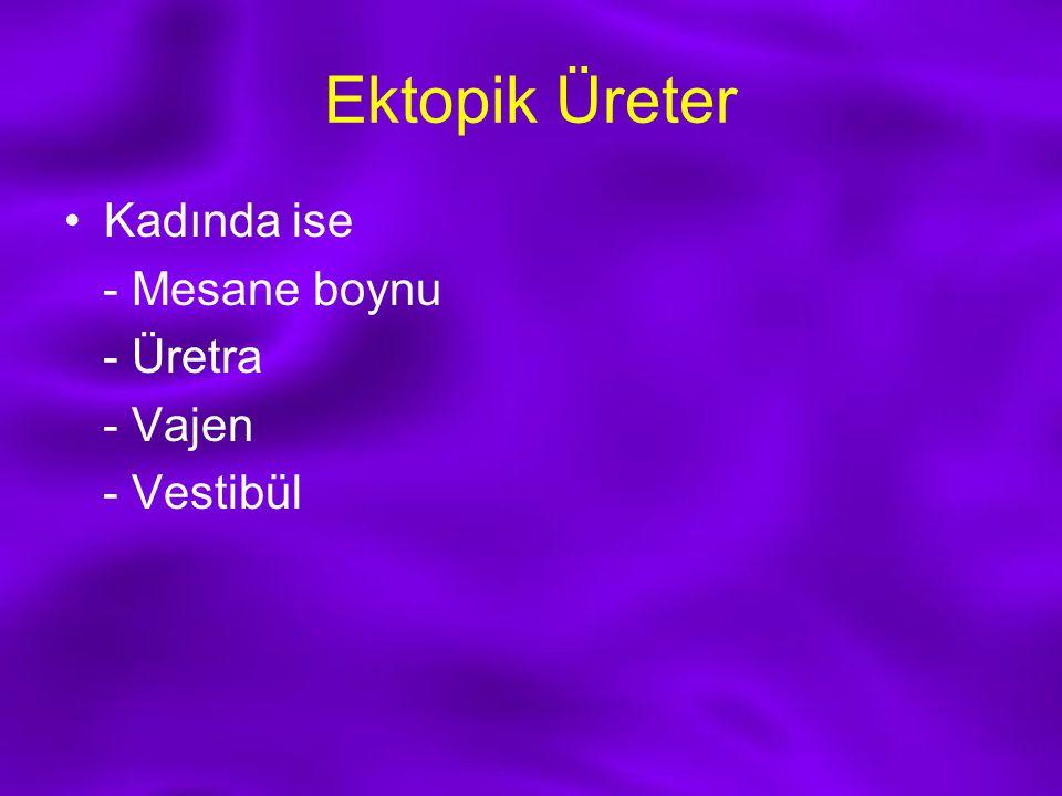Ektopik Üreter Kadında ise - Mesane boynu - Üretra - Vajen - Vestibül