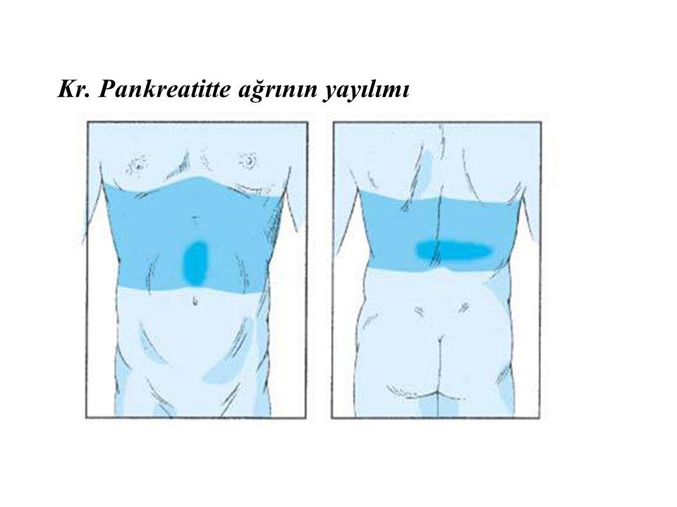 Kr. Pankreatitte ağrının yayılımı