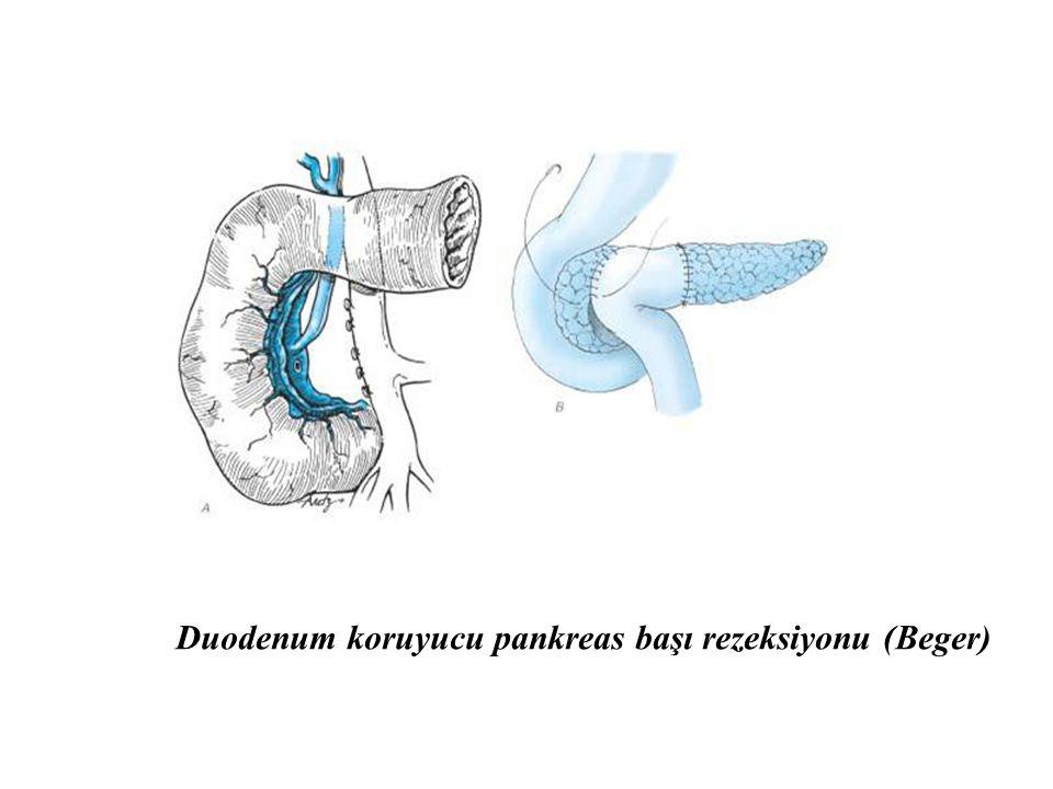 Duodenum koruyucu pankreas başı rezeksiyonu (Beger)