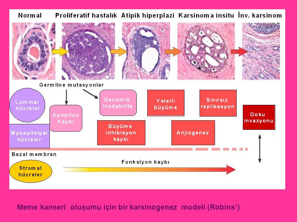 Meme kanseri oluşumu için bir karsinogenez modeli (Robins')