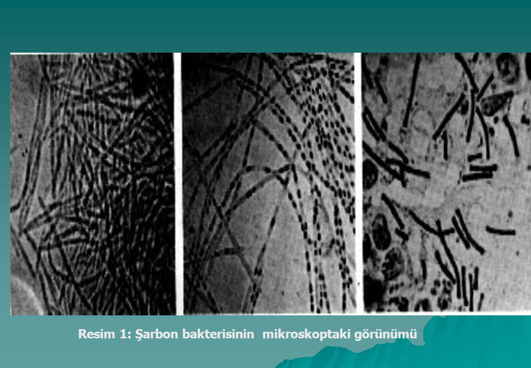 Resim 1: Şarbon bakterisinin mikroskoptaki görünümü