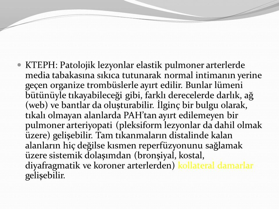 KTEPH: Patolojik lezyonlar elastik pulmoner arterlerde media tabakasına sıkıca tutunarak normal intimanın yerine geçen organize trombüslerle ayırt edilir.