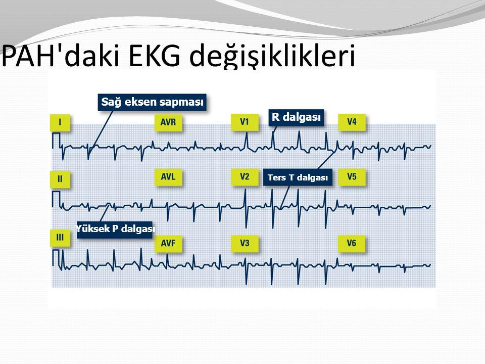 PAH daki EKG değişiklikleri