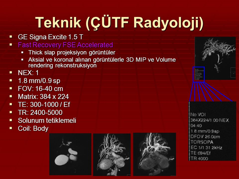 Teknik (ÇÜTF Radyoloji)