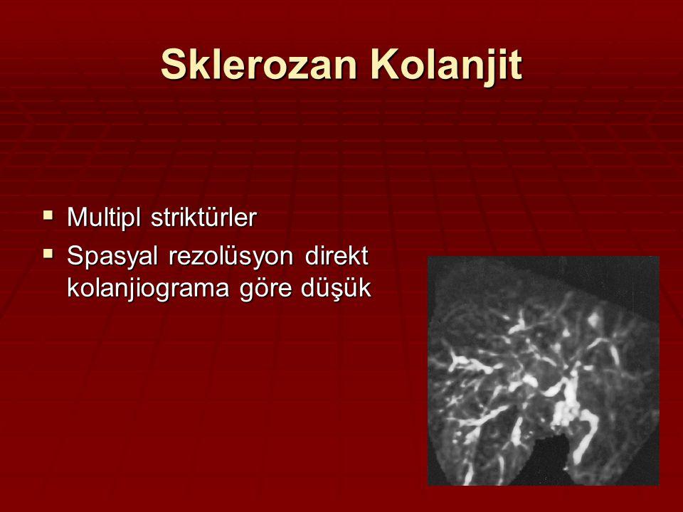 Sklerozan Kolanjit Multipl striktürler