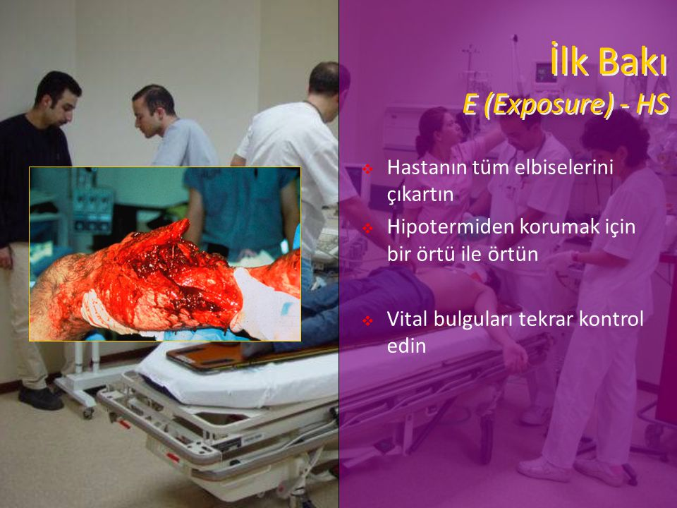 İlk Bakı E (Exposure) - HS