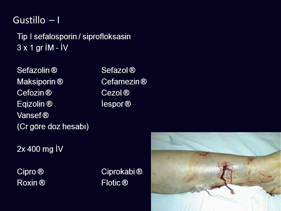 Gustillo – I Tip I sefalosporin / siprofloksasin 3 x 1 gr İM - İV