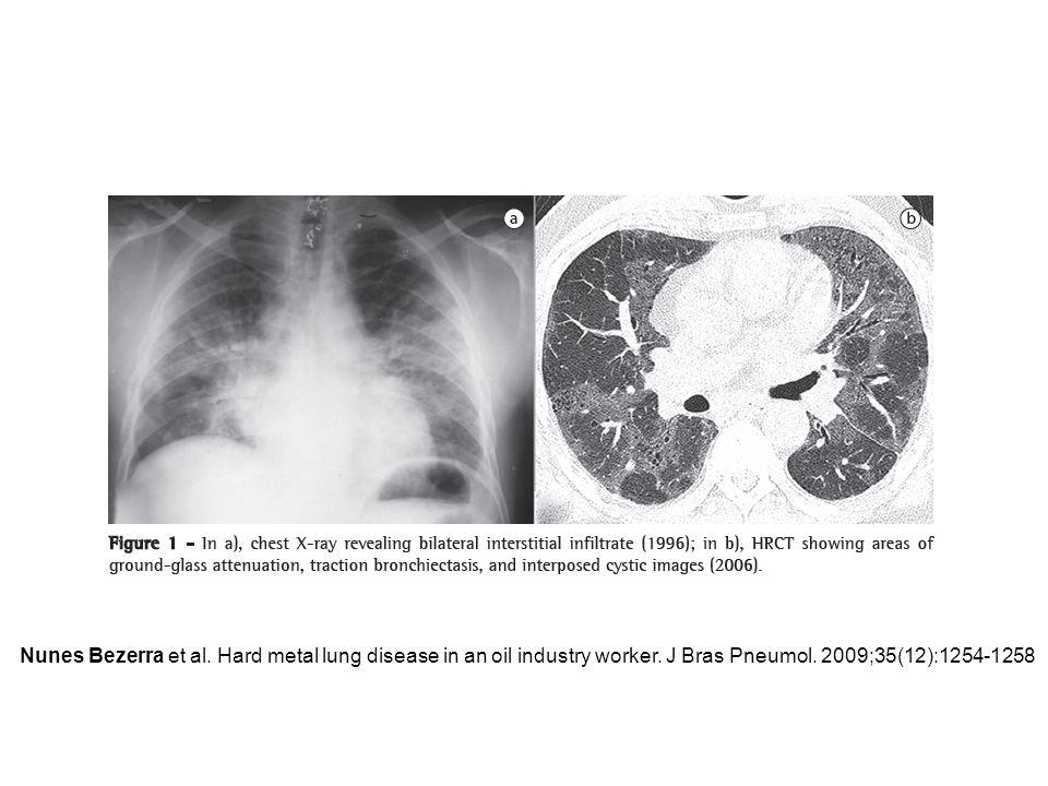 Nunes Bezerra et al. Hard metal lung disease in an oil industry worker