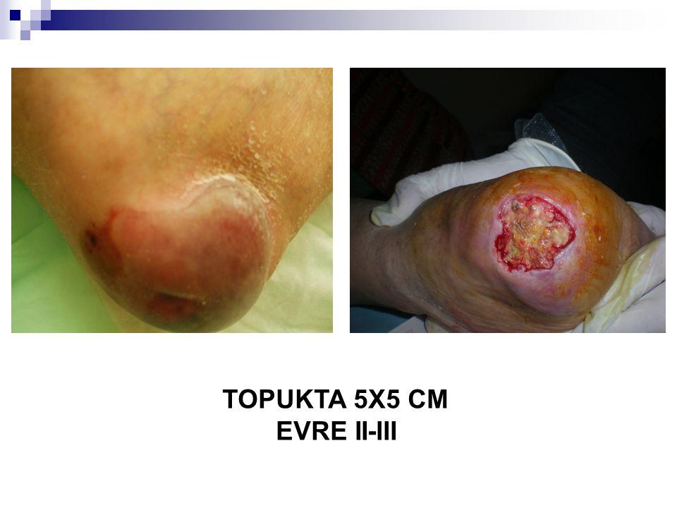 TOPUKTA 5X5 CM EVRE II-III