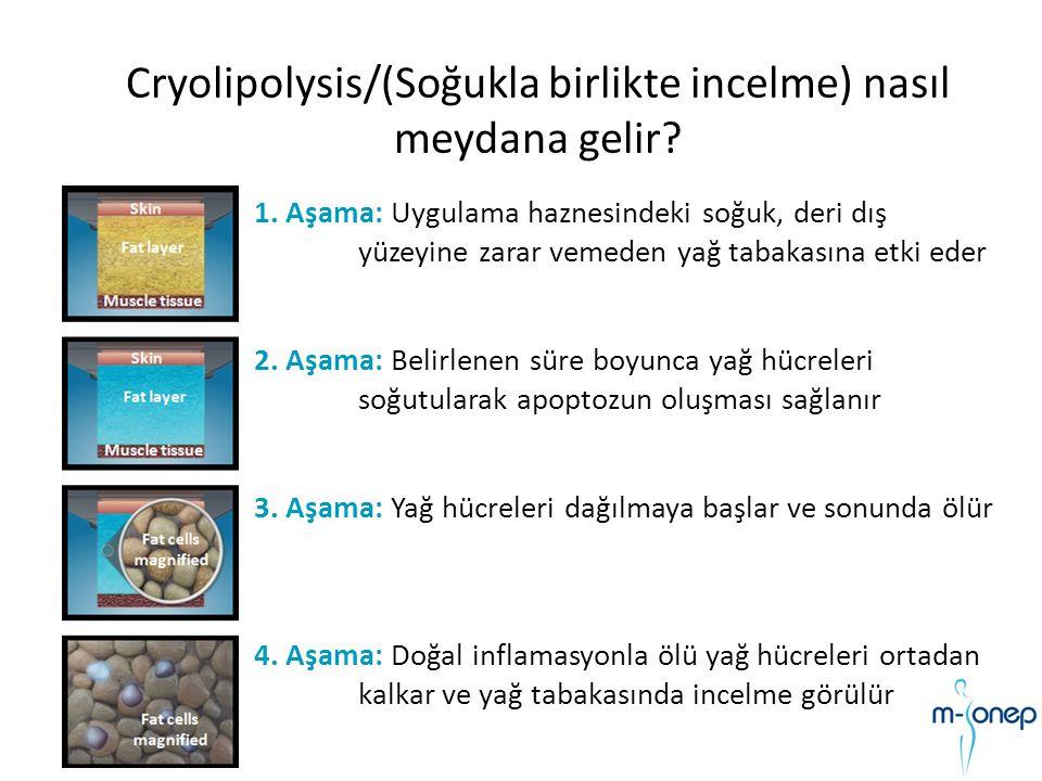 Cryolipolysis/(Soğukla birlikte incelme) nasıl meydana gelir