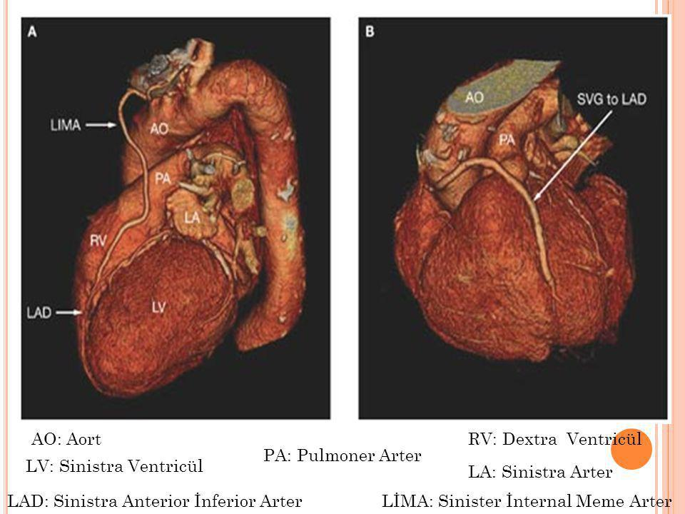 AO: Aort RV: Dextra Ventricül. PA: Pulmoner Arter. LV: Sinistra Ventricül. LA: Sinistra Arter. LAD: Sinistra Anterior İnferior Arter.