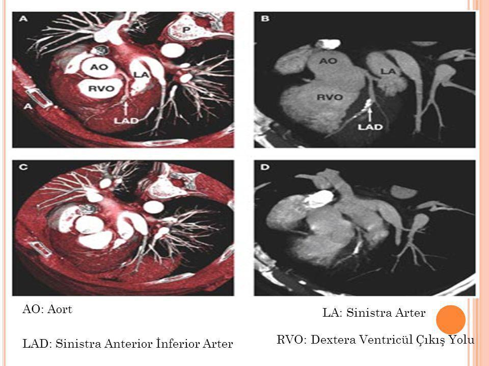 AO: Aort LA: Sinistra Arter RVO: Dextera Ventricül Çıkış Yolu LAD: Sinistra Anterior İnferior Arter