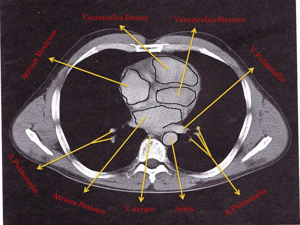 Ventriculus Dexter Ventriculus Sinister. Atrium Dextrum. V.Pulmonalis. A.Pulmonalis. A.Pulmonalis.