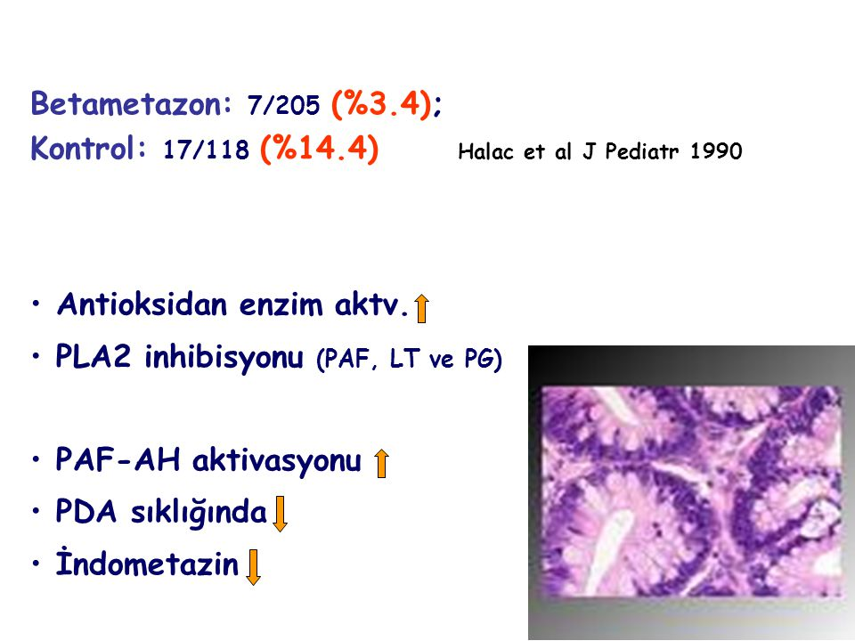 Betametazon: 7/205 (%3.4); Kontrol: 17/118 (%14.4) Halac et al J Pediatr 1990. Antioksidan enzim aktv.