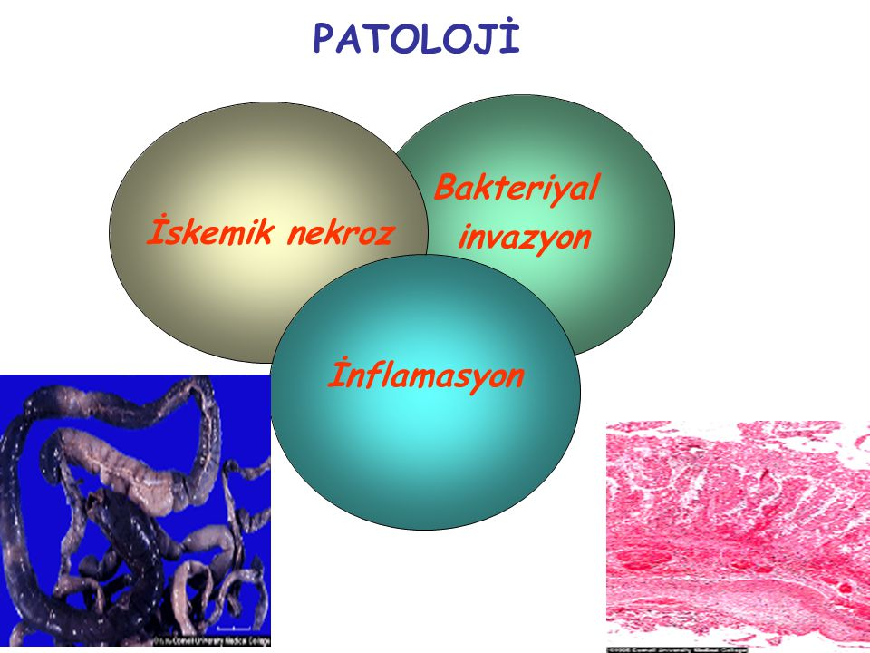 PATOLOJİ Bakteriyal invazyon İskemik nekroz İnflamasyon