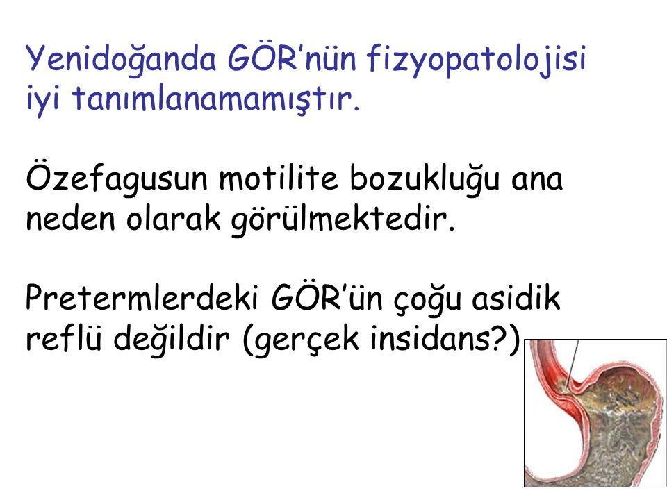 Yenidoğanda GÖR'nün fizyopatolojisi iyi tanımlanamamıştır