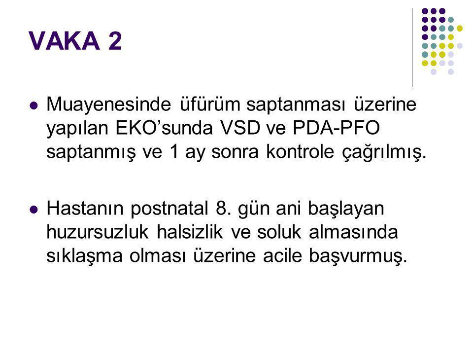 VAKA 2 Muayenesinde üfürüm saptanması üzerine yapılan EKO'sunda VSD ve PDA-PFO saptanmış ve 1 ay sonra kontrole çağrılmış.