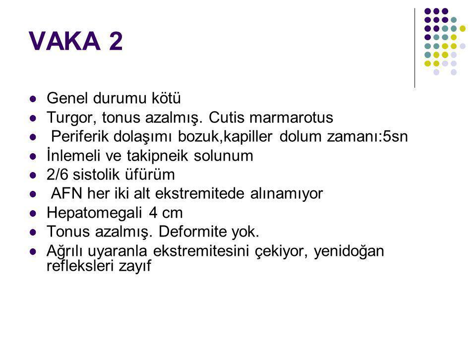 VAKA 2 Genel durumu kötü Turgor, tonus azalmış. Cutis marmarotus