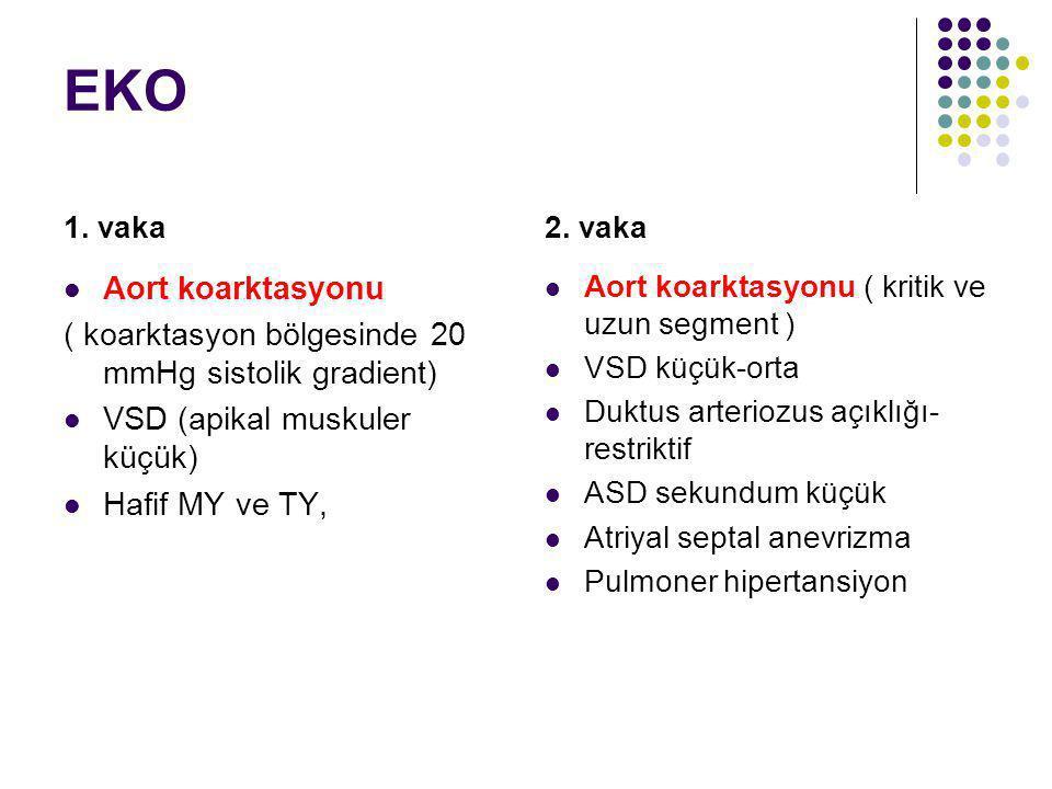 EKO 1. vaka. 2. vaka. Aort koarktasyonu. ( koarktasyon bölgesinde 20 mmHg sistolik gradient) VSD (apikal muskuler küçük)