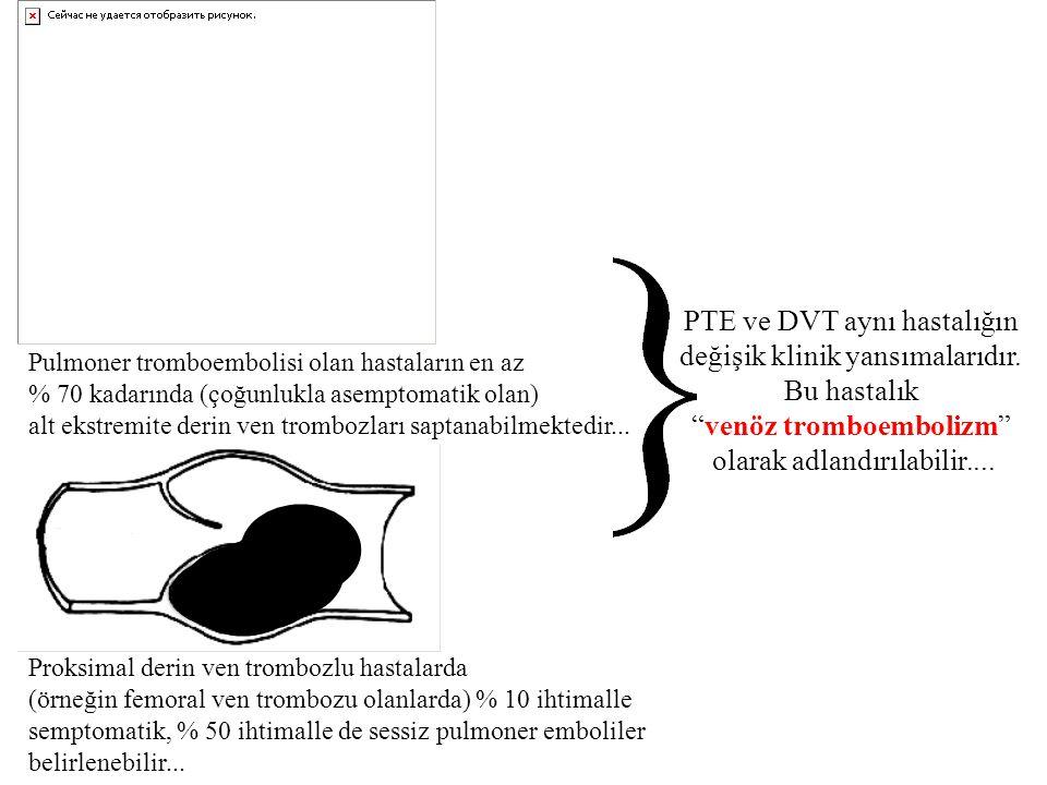 PTE ve DVT aynı hastalığın değişik klinik yansımalarıdır. Bu hastalık